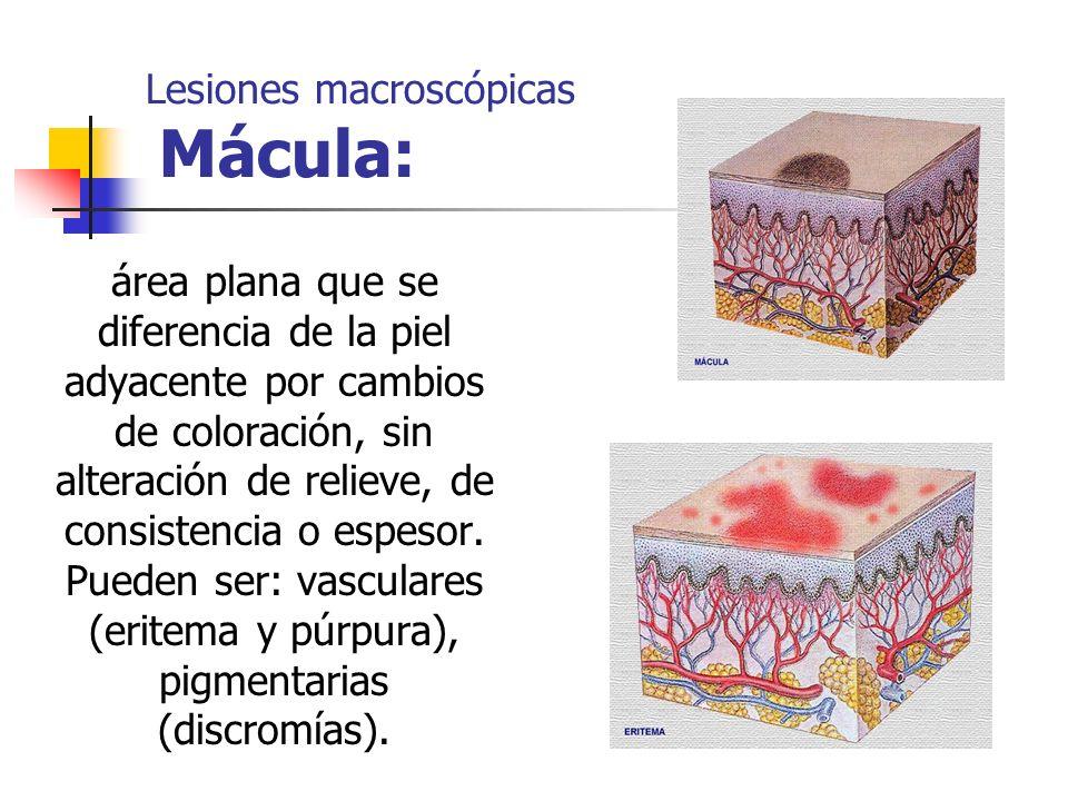 Lesiones macroscópicas Mácula: área plana que se diferencia de la piel adyacente por cambios de coloración, sin alteración de relieve, de consistencia