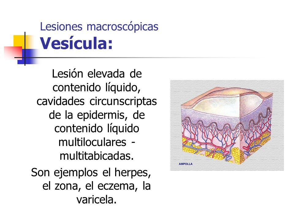 Lesión elevada de contenido líquido, cavidades circunscriptas de la epidermis, de contenido líquido multiloculares - multitabicadas. Son ejemplos el h