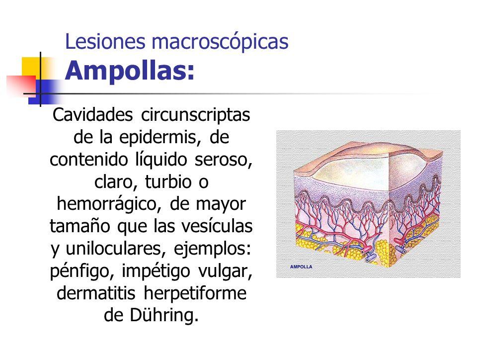 Cavidades circunscriptas de la epidermis, de contenido líquido seroso, claro, turbio o hemorrágico, de mayor tamaño que las vesículas y uniloculares,