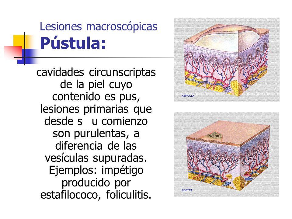 Lesiones macroscópicas Pústula: cavidades circunscriptas de la piel cuyo contenido es pus, lesiones primarias que desde su comienzo son purulentas, a