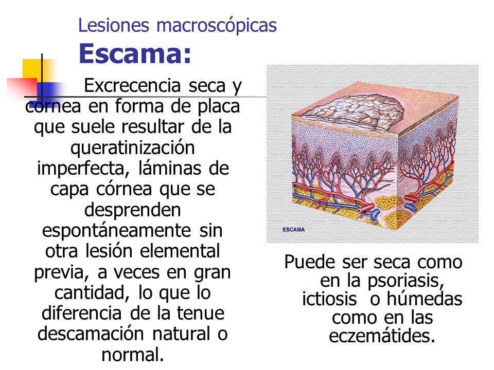 Lesiones macroscópicas Escama: Excrecencia seca y cornea en forma de placa que suele resultar de la queratinización imperfecta, láminas de capa córnea