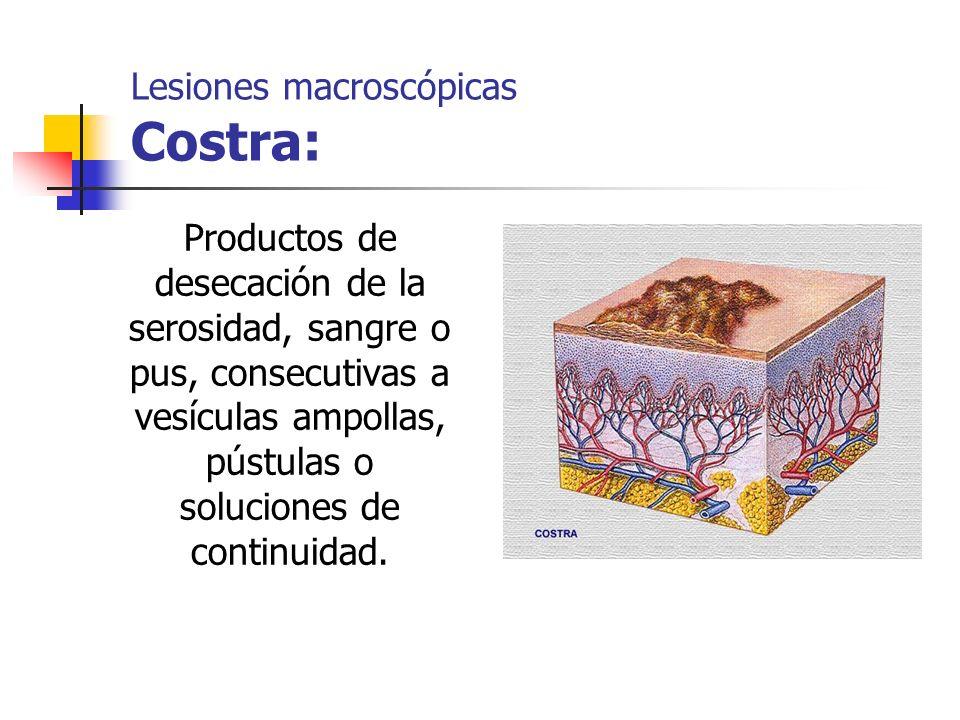 Lesiones macroscópicas Costra: Productos de desecación de la serosidad, sangre o pus, consecutivas a vesículas ampollas, pústulas o soluciones de cont