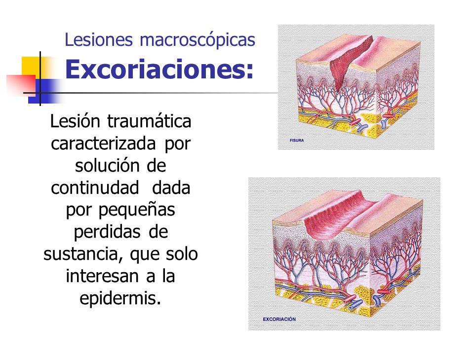 Lesiones macroscópicas Excoriaciones: Lesión traumática caracterizada por solución de continudad dada por pequeñas perdidas de sustancia, que solo int