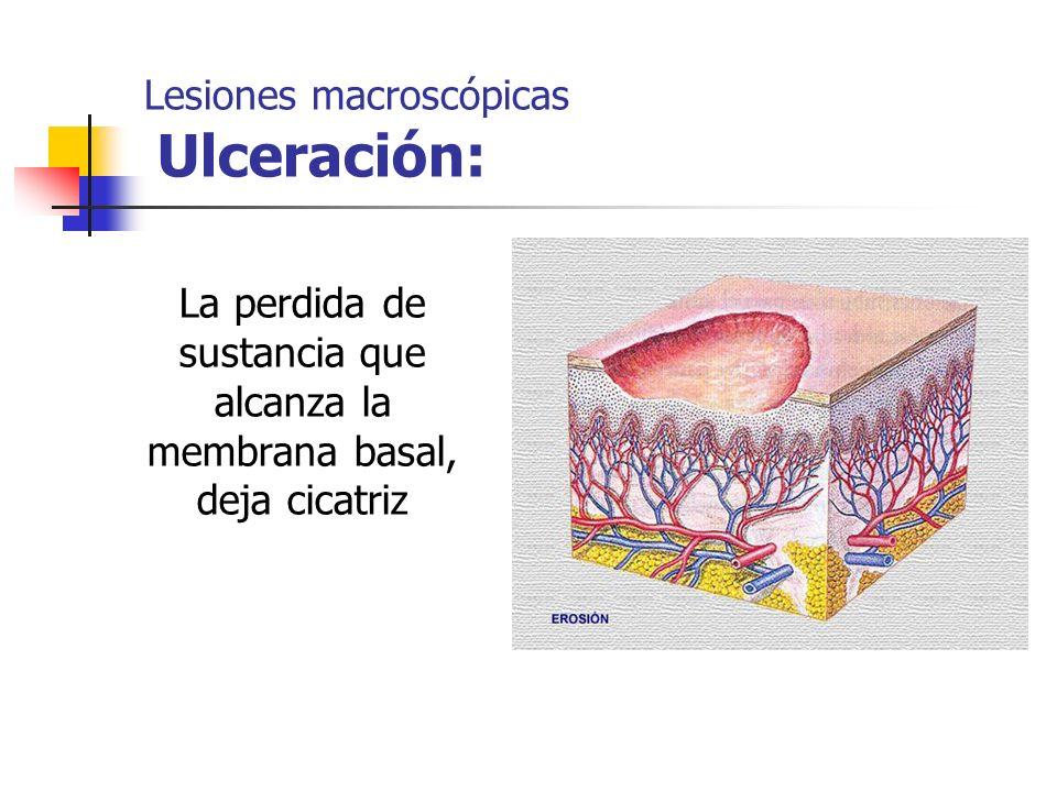 Lesiones macroscópicas Ulceración: La perdida de sustancia que alcanza la membrana basal, deja cicatriz