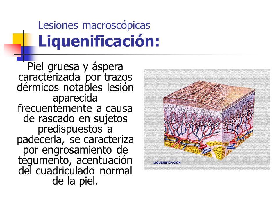 Lesiones macroscópicas Liquenificación: Piel gruesa y áspera caracterizada por trazos dérmicos notables lesión aparecida frecuentemente a causa de ras
