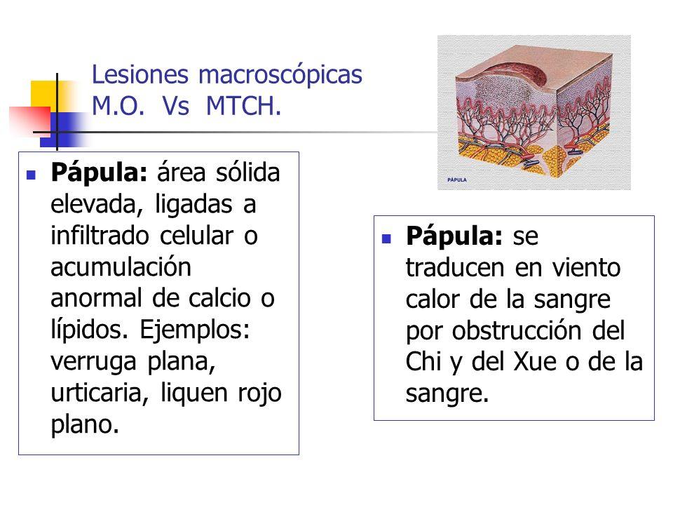 Lesiones macroscópicas M.O. Vs MTCH. Pápula: área sólida elevada, ligadas a infiltrado celular o acumulación anormal de calcio o lípidos. Ejemplos: ve