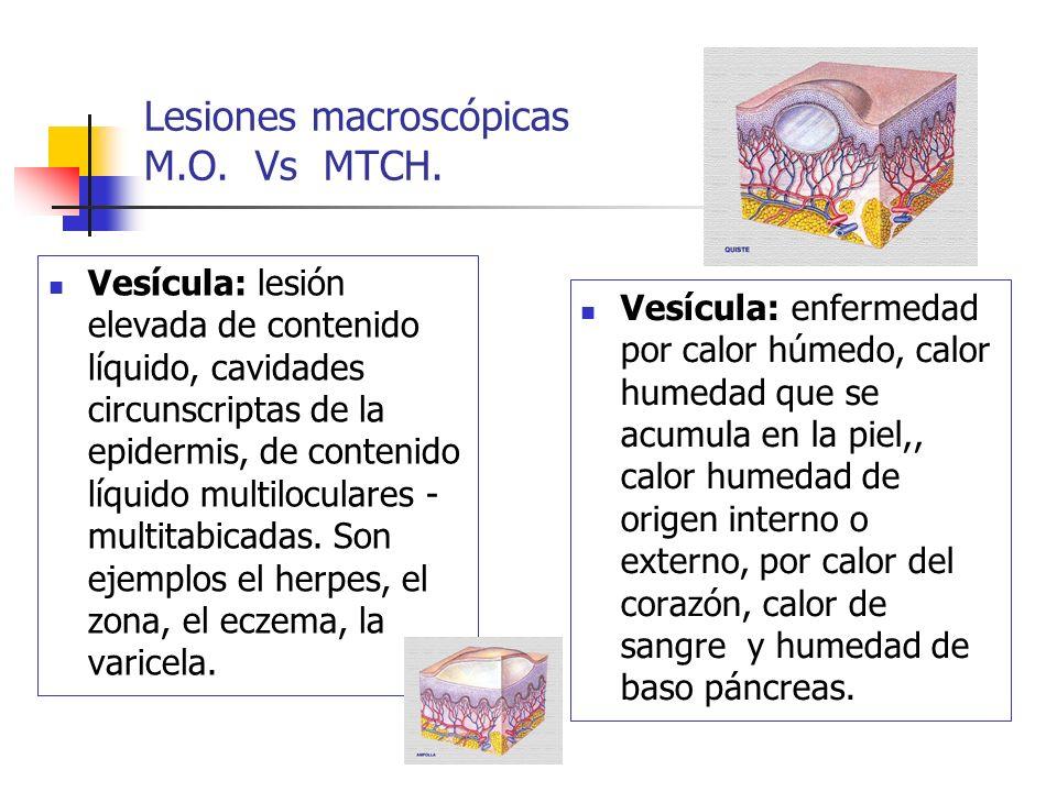 Lesiones macroscópicas M.O. Vs MTCH. Vesícula: lesión elevada de contenido líquido, cavidades circunscriptas de la epidermis, de contenido líquido mul