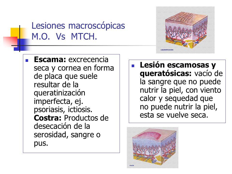 Lesiones macroscópicas M.O. Vs MTCH. Escama: excrecencia seca y cornea en forma de placa que suele resultar de la queratinización imperfecta, ej. psor