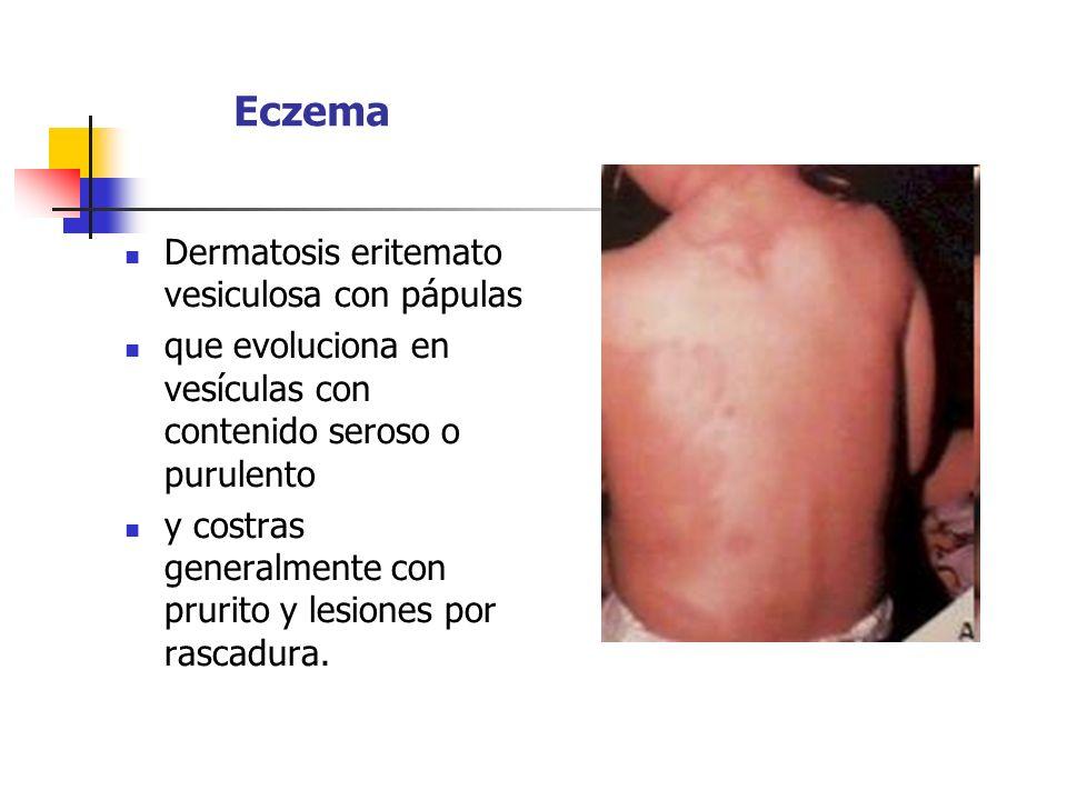 Eczema Dermatosis eritemato vesiculosa con pápulas que evoluciona en vesículas con contenido seroso o purulento y costras generalmente con prurito y l