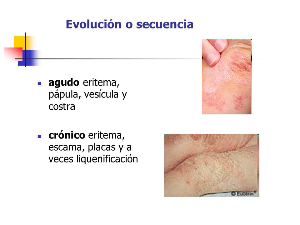 Evolución o secuencia agudo eritema, pápula, vesícula y costra crónico eritema, escama, placas y a veces liquenificación