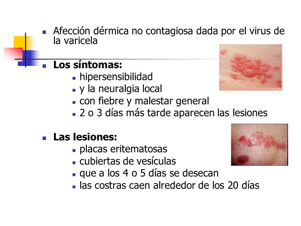 Afección dérmica no contagiosa dada por el virus de la varicela Los síntomas: hipersensibilidad y la neuralgia local con fiebre y malestar general 2 o