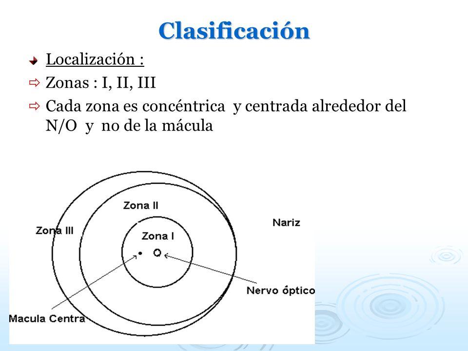 Clasificación Localización : Zonas : I, II, III Cada zona es concéntrica y centrada alrededor del N/O y no de la mácula