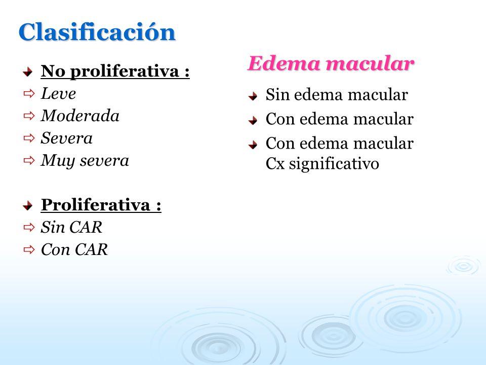 Clasificación No proliferativa : Leve Moderada Severa Muy severa Proliferativa : Sin CAR Con CAR Edema macular Sin edema macular Con edema macular Con