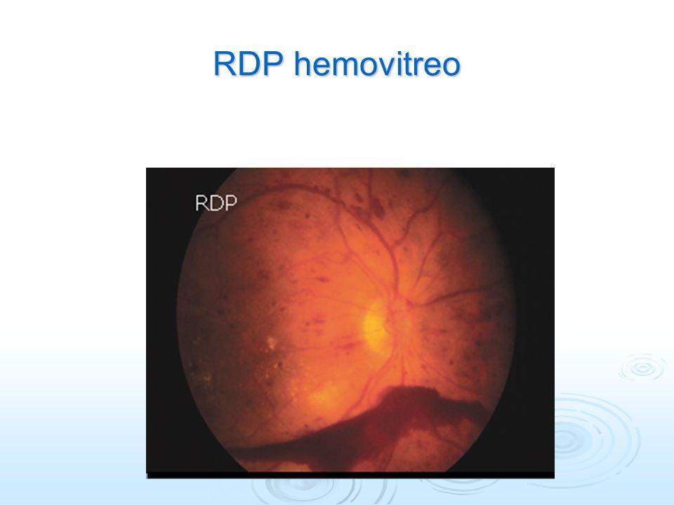 RDP hemovitreo