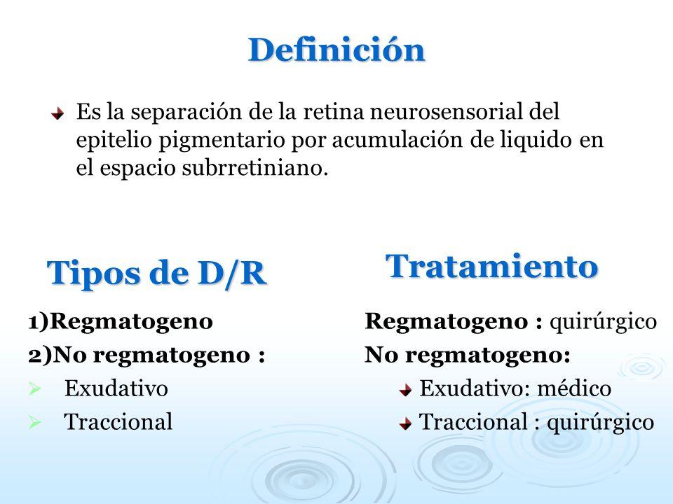 Definición Es la separación de la retina neurosensorial del epitelio pigmentario por acumulación de liquido en el espacio subrretiniano. Tipos de D/R