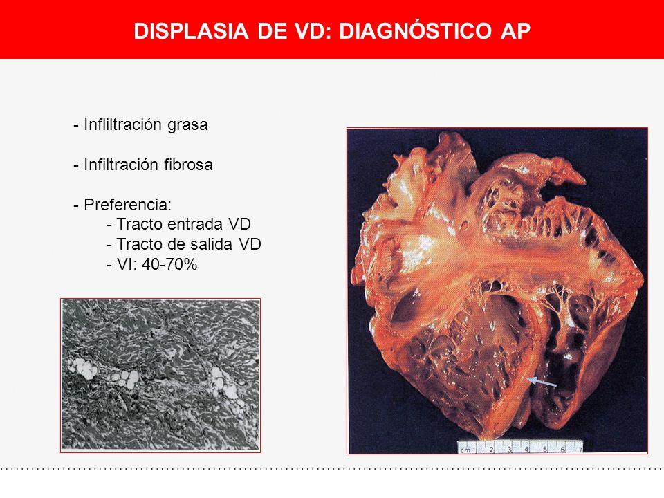 DISPLASIA DE VD: DIAGNÓSTICO AP - Infliltración grasa - Infiltración fibrosa - Preferencia: - Tracto entrada VD - Tracto de salida VD - VI: 40-70%