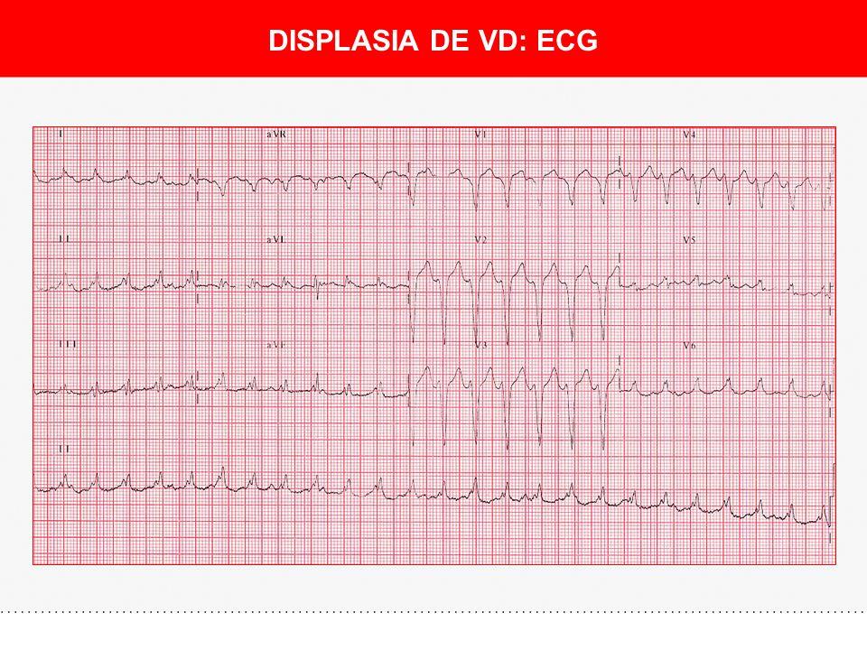 DISPLASIA DE VD: DIAGNÓSTICO Ecografía intracardíaca ¡El ecocardiograma convencional muchas veces es normal!
