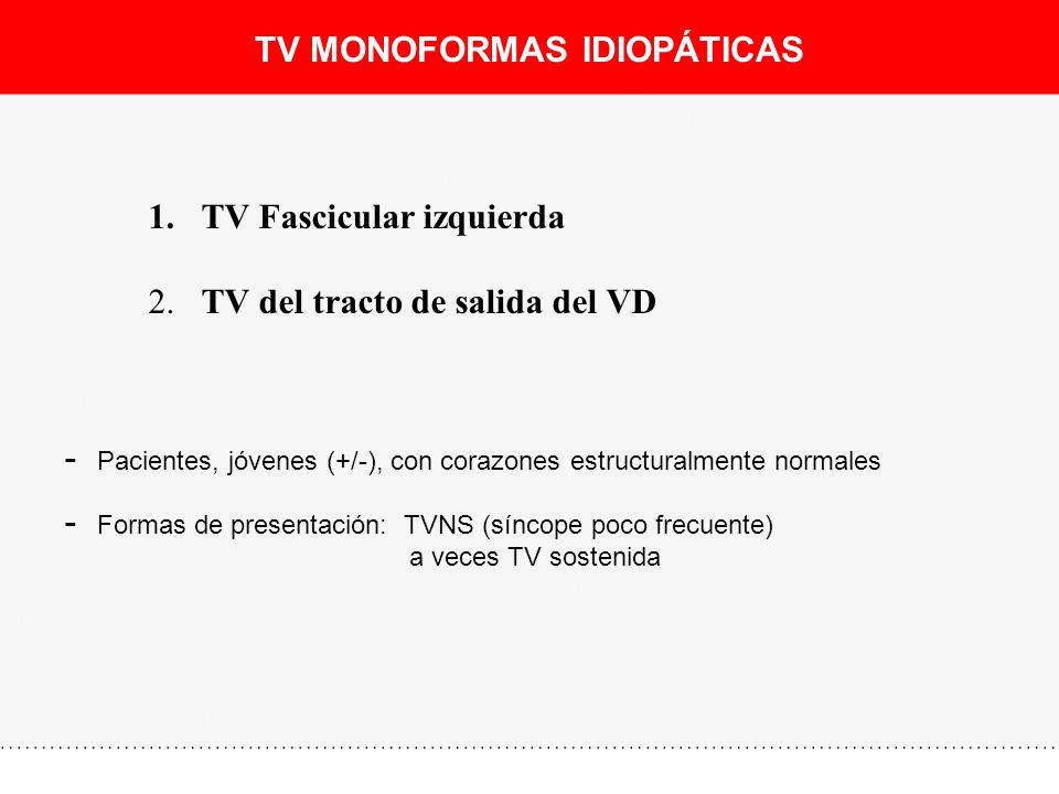 TV FASCICULAR IZQUIERDA II, III, aVF I,aVL - Formas de presentación: - TVNS (síncope poco frecuente) - ECG: - QRS (-) inferior - QRS (+) en I, aVL - QRS (+) en V1 - Tratamiento: - Fármacos: Verapamil - Ablación: Exito (>90%)