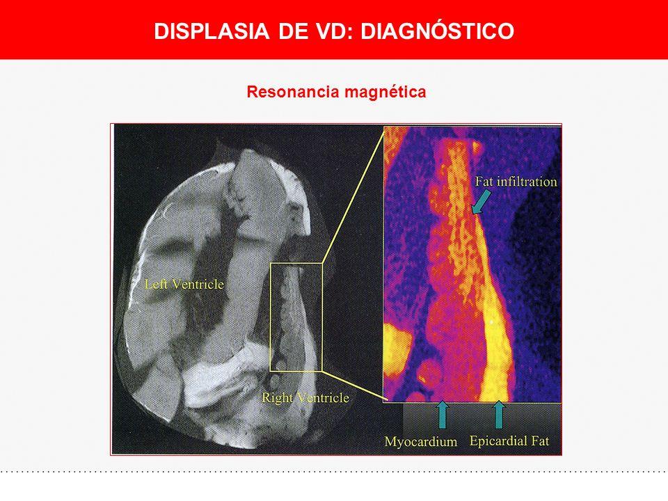 DISPLASIA DE VD: DIAGNÓSTICO Resonancia magnética