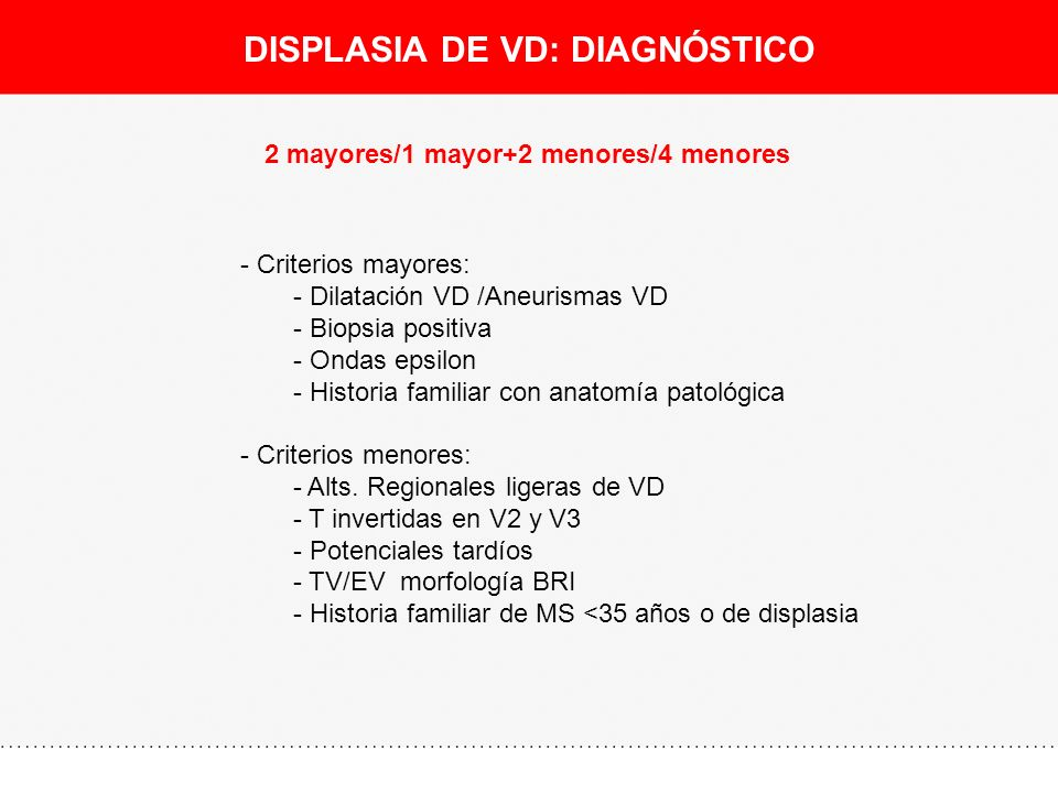 DISPLASIA DE VD: DIAGNÓSTICO 2 mayores/1 mayor+2 menores/4 menores - Criterios mayores: - Dilatación VD /Aneurismas VD - Biopsia positiva - Ondas epsi