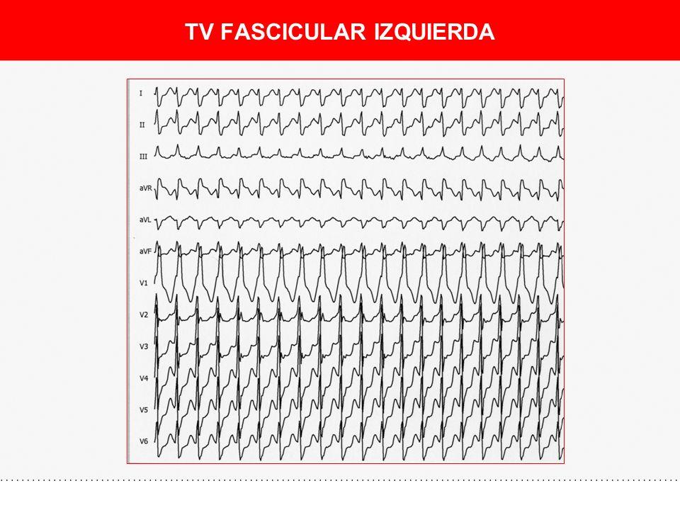 TV DEL TRACTO DE SALIDA DE VD (VI) II, III, aVF V1V2 V3 - Formas de presentación: - TV monomorfa repetitiva (salvas repetitivas de TVNS) - TVNS (síncope poco frecuente) - ECG: - QRS (+) inferior - QRS (-) en V1 - Transición en V3 (VD) o V2 (VI) - Tratamiento: - Fármacos: ß-bloq, Verapamil, ADP - Ablación: Exito (>90%)