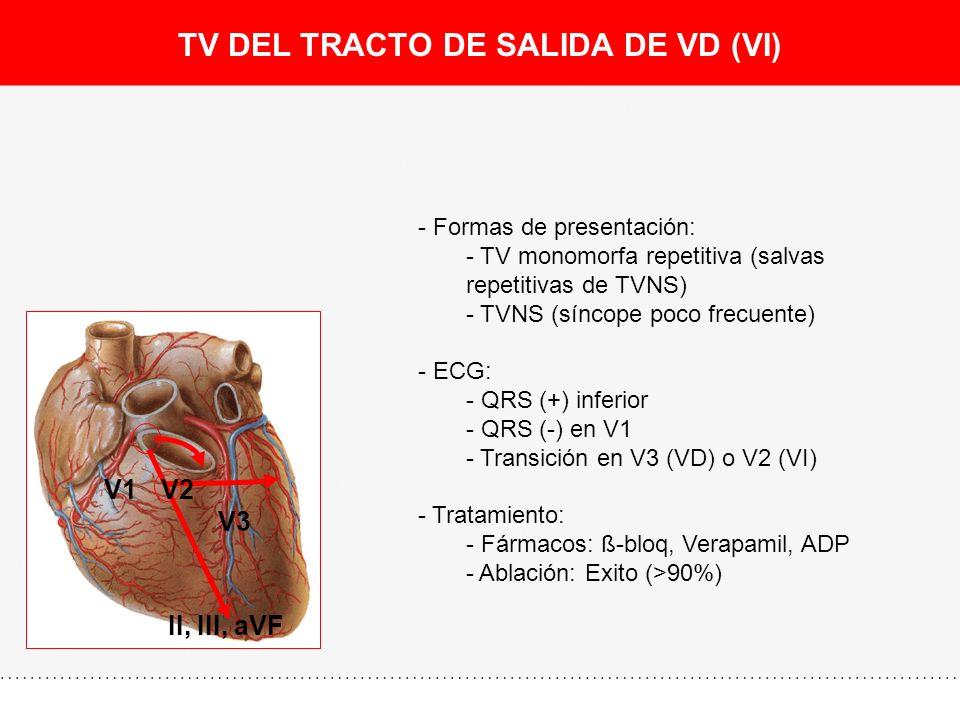 TV DEL TRACTO DE SALIDA DE VD (VI) II, III, aVF V1V2 V3 - Formas de presentación: - TV monomorfa repetitiva (salvas repetitivas de TVNS) - TVNS (sínco