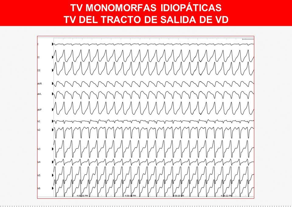 TV MONOMORFAS IDIOPÁTICAS TV DEL TRACTO DE SALIDA DE VD