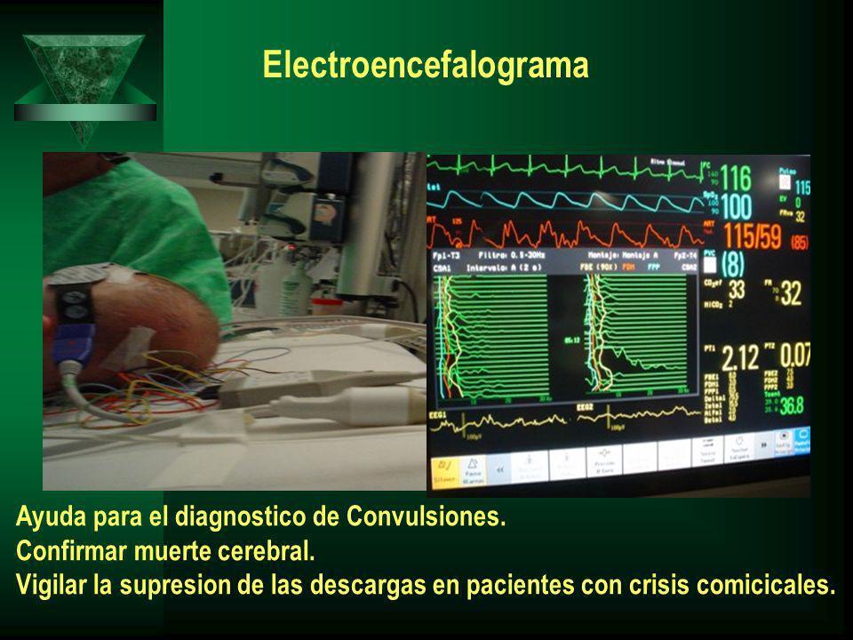 Electroencefalograma Ayuda para el diagnostico de Convulsiones. Confirmar muerte cerebral. Vigilar la supresion de las descargas en pacientes con cris