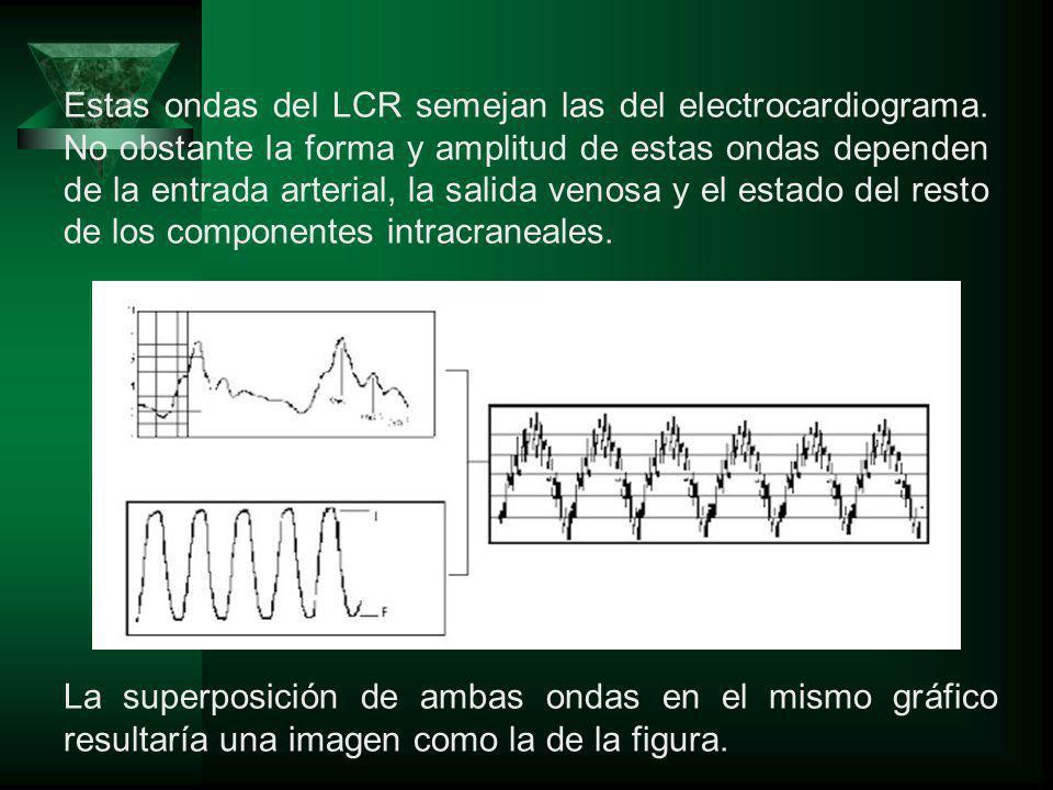 La superposición de ambas ondas en el mismo gráfico resultaría una imagen como la de la figura. Estas ondas del LCR semejan las del electrocardiograma