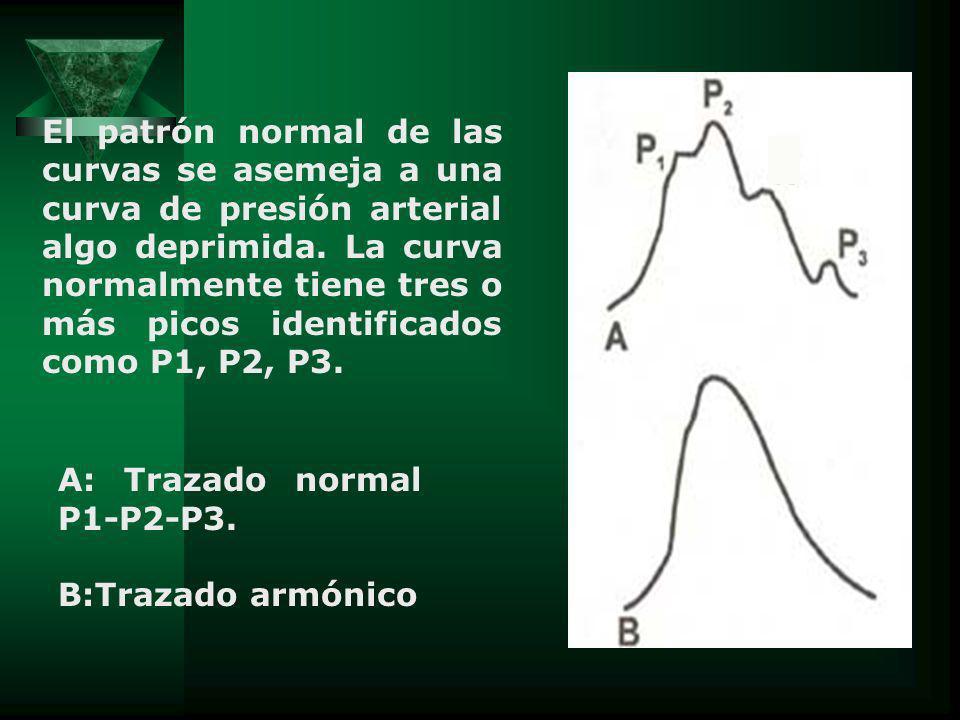 A: Trazado normal P1-P2-P3. B:Trazado armónico El patrón normal de las curvas se asemeja a una curva de presión arterial algo deprimida. La curva norm