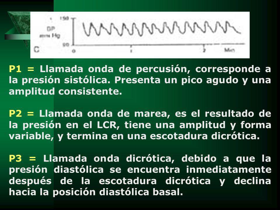P1 = Llamada onda de percusión, corresponde a la presión sistólica. Presenta un pico agudo y una amplitud consistente. P2 = Llamada onda de marea, es