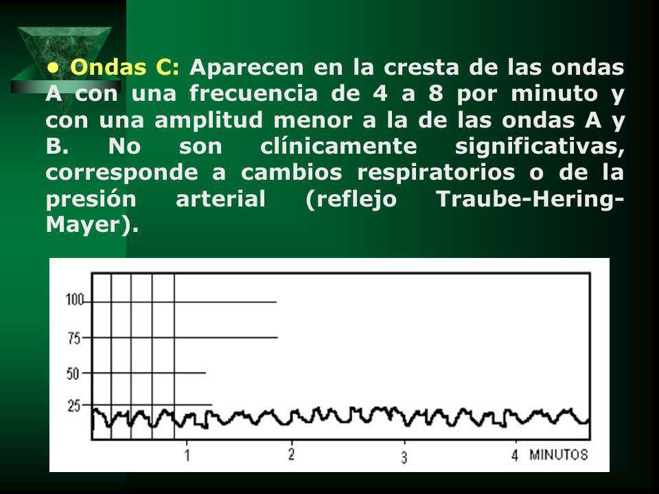 Ondas C: Aparecen en la cresta de las ondas A con una frecuencia de 4 a 8 por minuto y con una amplitud menor a la de las ondas A y B.