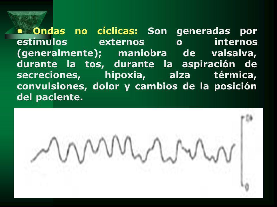 Ondas no cíclicas: Son generadas por estímulos externos o internos (generalmente); maniobra de valsalva, durante la tos, durante la aspiración de secr