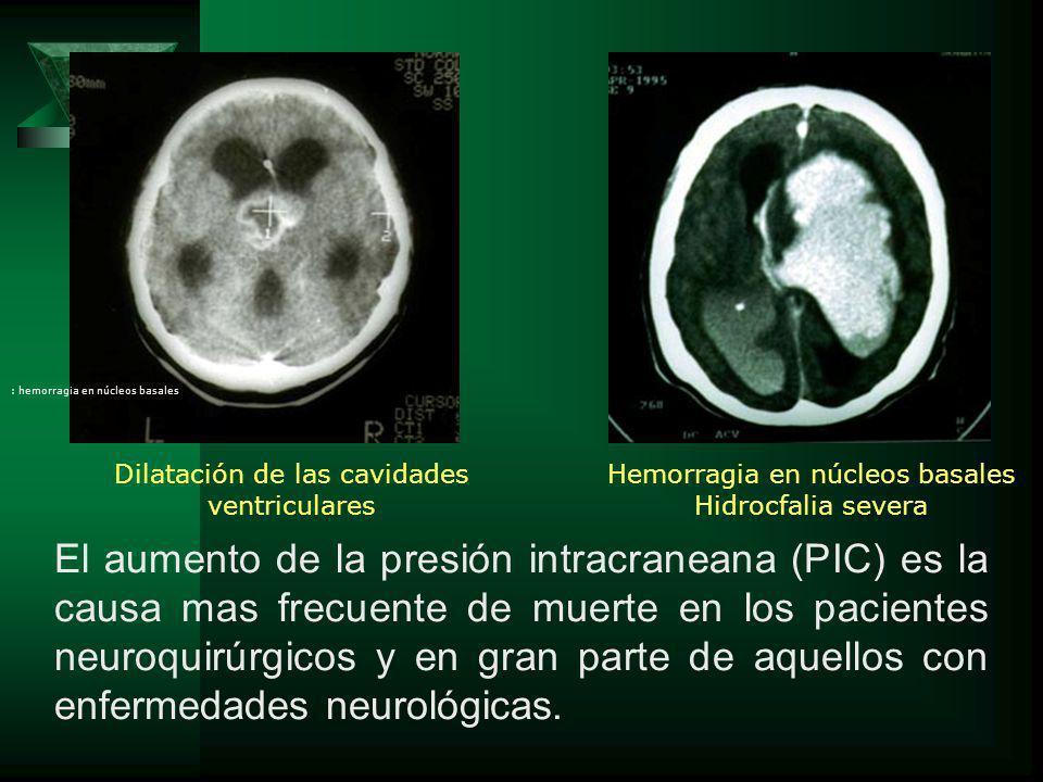 El aumento de la presión intracraneana (PIC) es la causa mas frecuente de muerte en los pacientes neuroquirúrgicos y en gran parte de aquellos con enf