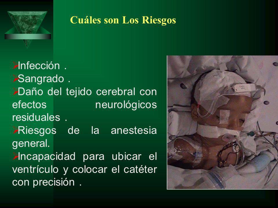 Infección. Sangrado. Daño del tejido cerebral con efectos neurológicos residuales. Riesgos de la anestesia general. Incapacidad para ubicar el ventríc