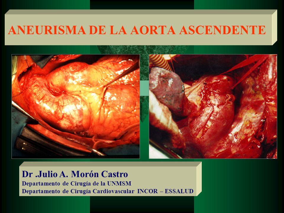 ANEURISMA Dilatación permanente y localizada de una arteria que tiene, al menos, 50% de aumento en el diámetro, comparado con el diámetro normal de la arteria en cuestión (Sociedad Internacional de Cirugía Vascular) ( Journal of Vascular Surgery 1991;13: 444-450)