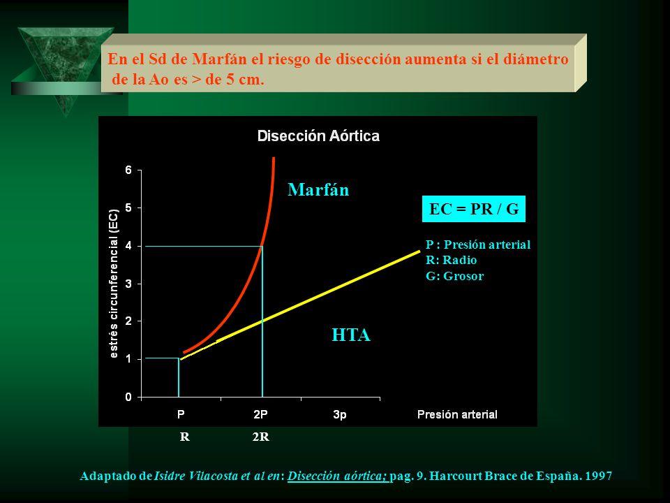 En el Sd de Marfán el riesgo de disección aumenta si el diámetro de la Ao es > de 5 cm. Marfán HTA EC = PR / G P : Presión arterial R: Radio G: Grosor