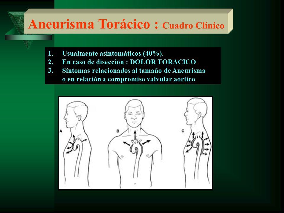 Aneurisma Torácico : Cuadro Clínico 1.Usualmente asintomáticos (40%). 2.En caso de disección : DOLOR TORACICO 3.Síntomas relacionados al tamaño de Ane