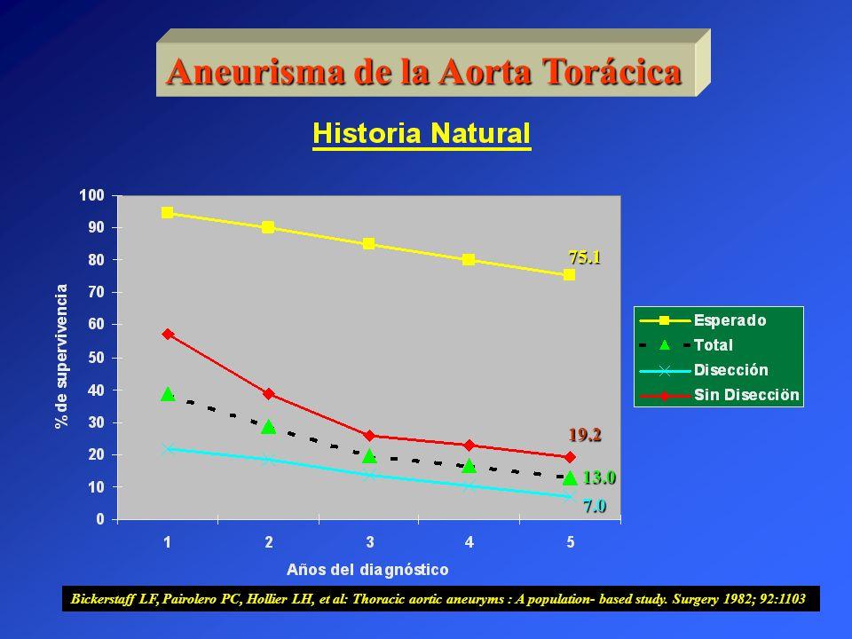 Aneurisma de la Aorta Torácica 75.1 19.2 13.0 7.0 Bickerstaff LF, Pairolero PC, Hollier LH, et al: Thoracic aortic aneuryms : A population- based stud