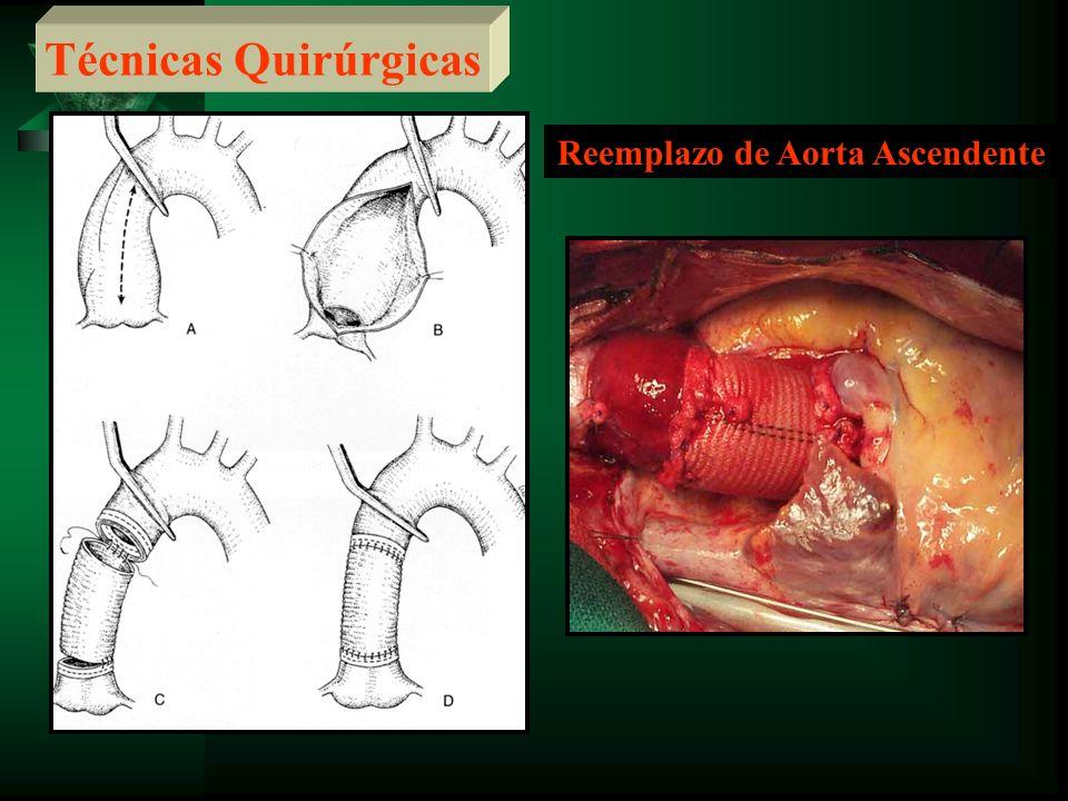 Reemplazo de Aorta Ascendente Técnicas Quirúrgicas