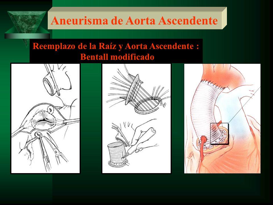 Aneurisma de Aorta Ascendente Reemplazo de la Raíz y Aorta Ascendente : Bentall modificado