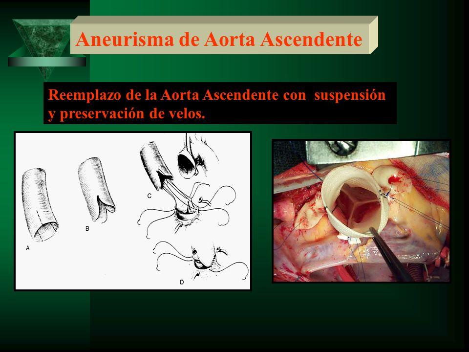 Reemplazo de la Aorta Ascendente con suspensión y preservación de velos.