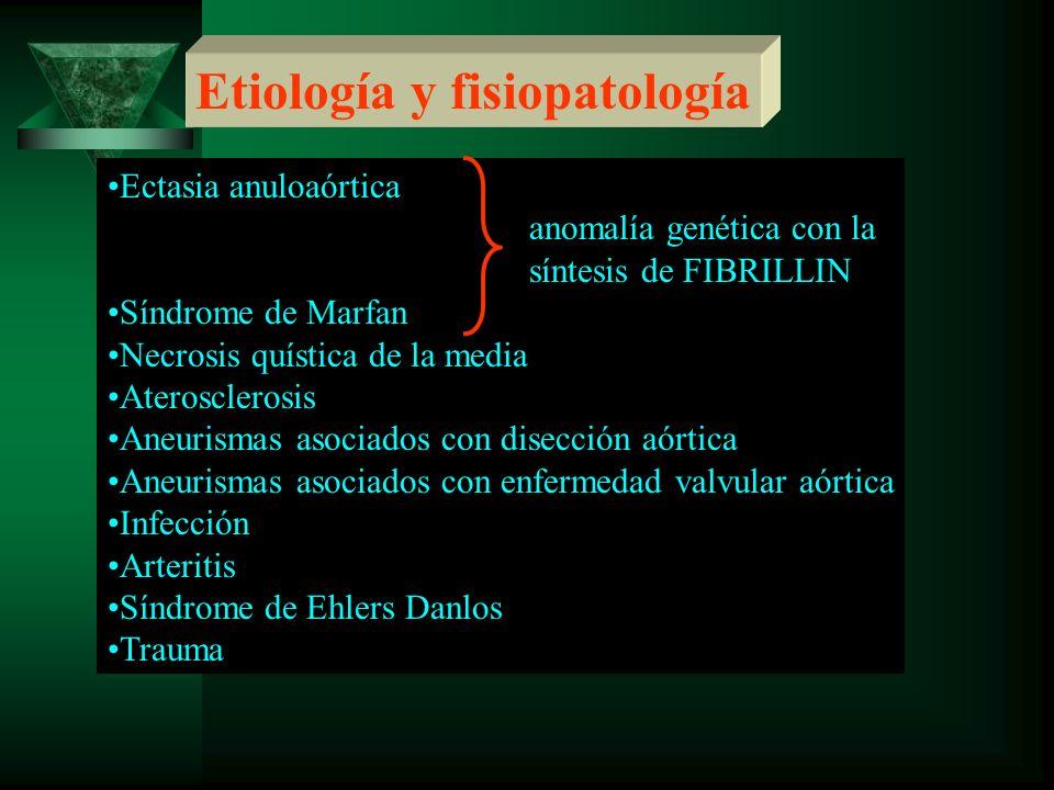 Etiología y fisiopatología Ectasia anuloaórtica anomalía genética con la síntesis de FIBRILLIN Síndrome de Marfan Necrosis quística de la media Ateros