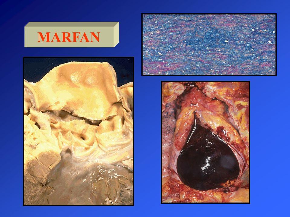 En el Sd de Marfán el riesgo de disección aumenta si el diámetro de la Ao es > de 5 cm.
