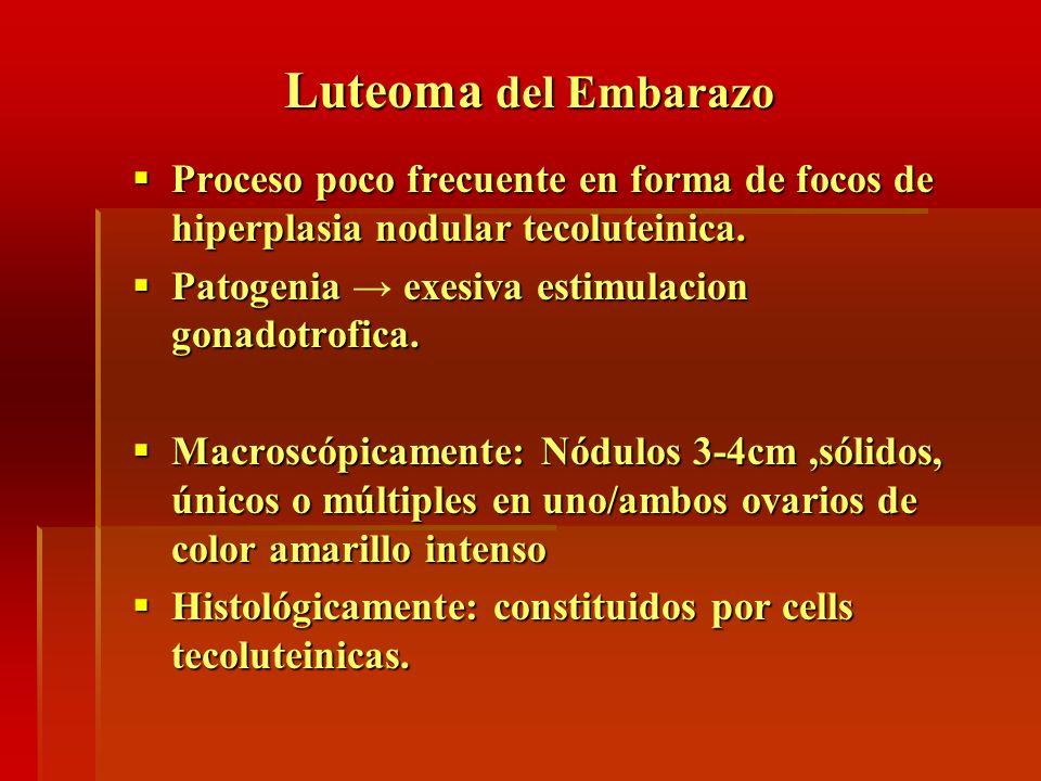 Luteoma del Embarazo Proceso poco frecuente en forma de focos de hiperplasia nodular tecoluteinica. Proceso poco frecuente en forma de focos de hiperp