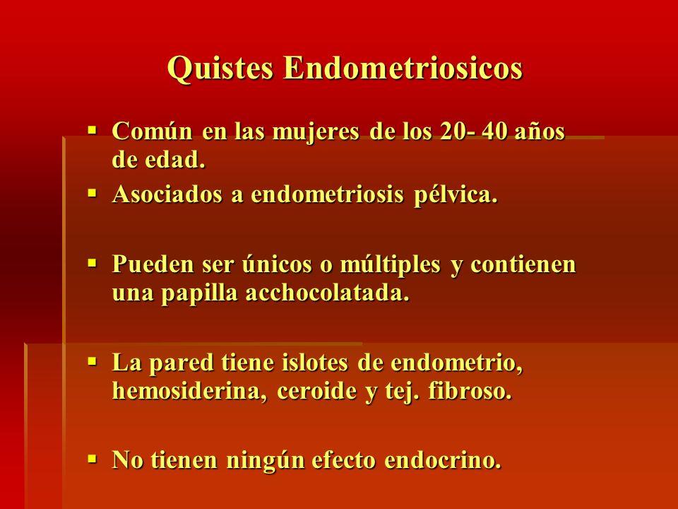 Quistes Endometriosicos Común en las mujeres de los 20- 40 años de edad. Común en las mujeres de los 20- 40 años de edad. Asociados a endometriosis pé