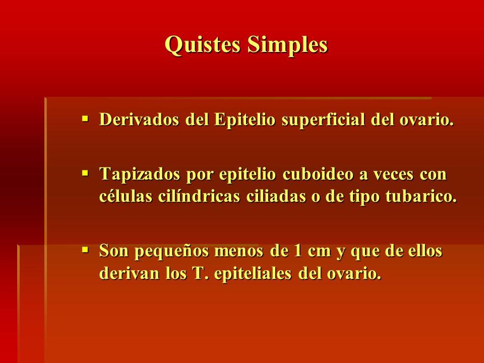 Quistes Simples Derivados del Epitelio superficial del ovario. Derivados del Epitelio superficial del ovario. Tapizados por epitelio cuboideo a veces