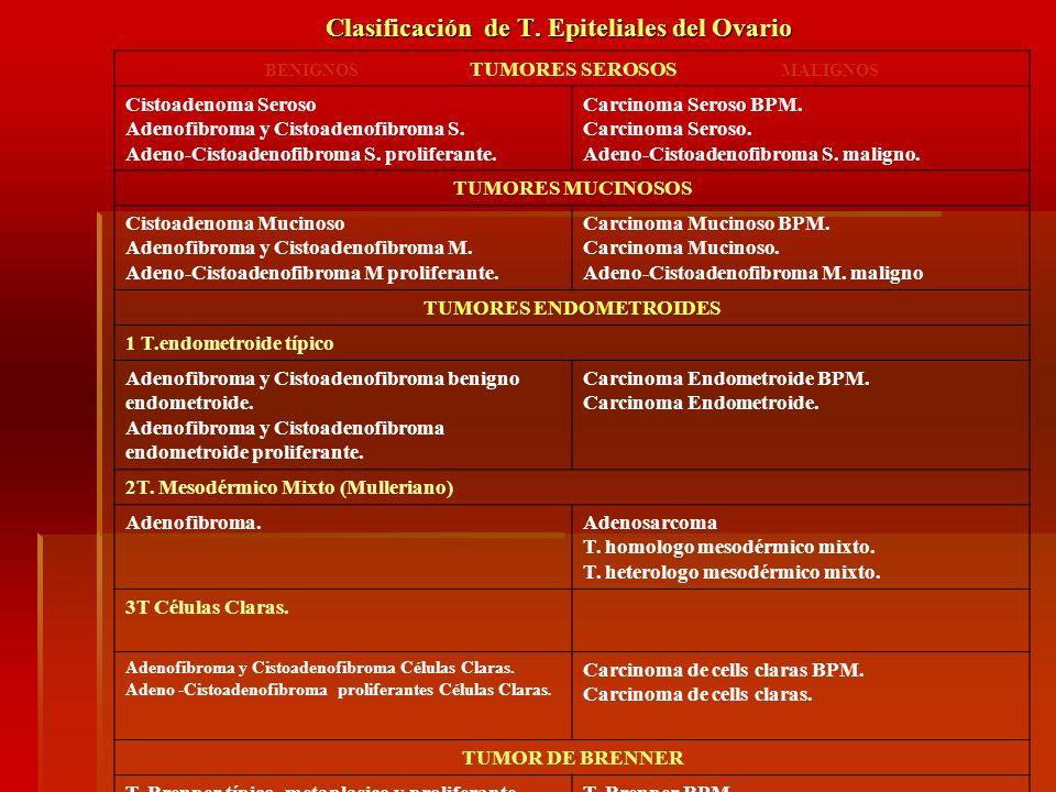 Clasificación de T. Epiteliales del Ovario BENIGNOS TUMORES SEROSOS MALIGNOS Cistoadenoma Seroso Adenofibroma y Cistoadenofibroma S. Adeno-Cistoadenof
