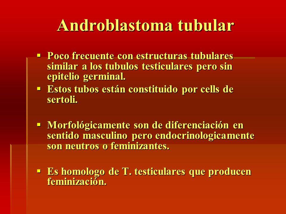 Androblastoma tubular Poco frecuente con estructuras tubulares similar a los tubulos testiculares pero sin epitelio germinal. Poco frecuente con estru