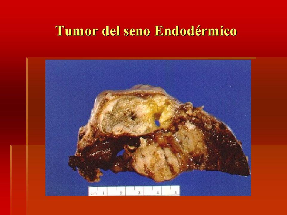 Tumor del seno Endodérmico